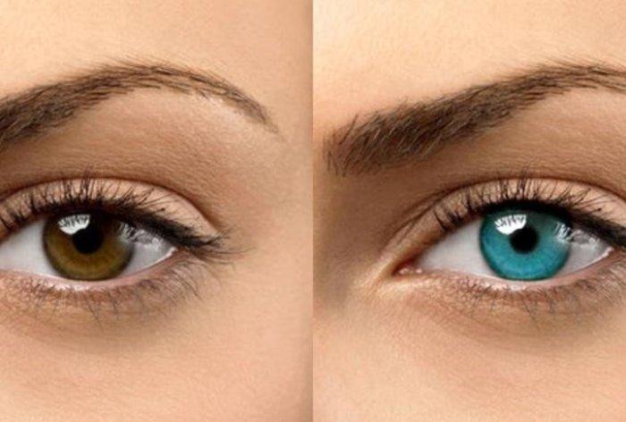 È possibile cambiare il colore degli occhi?