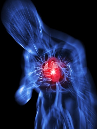 Lo stress incide sull'insorgenza dell'infarto?