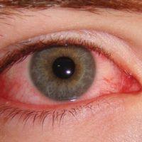 Perché quando si piange gli occhi diventano rossi?