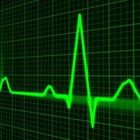 Come funziona l'elettrocardiogramma?