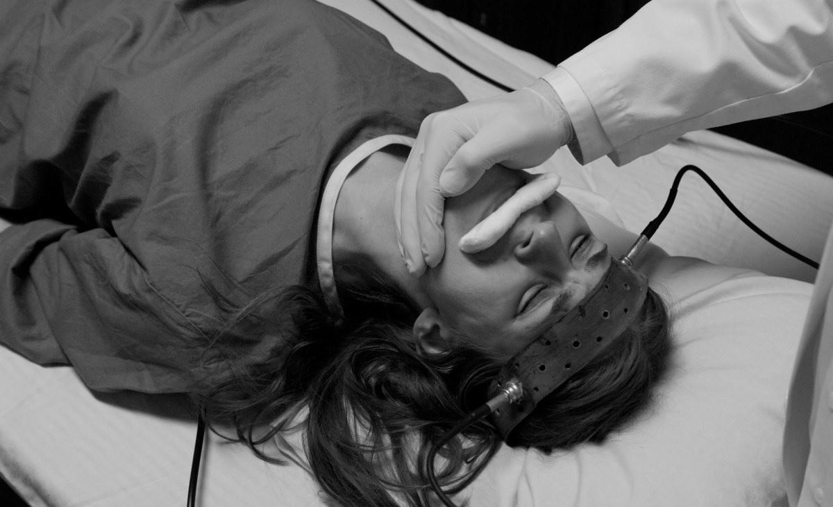 La terapia elettroconvulsivante