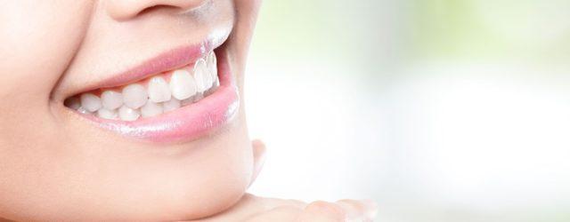 Esistono cibi che fanno bene ai denti?
