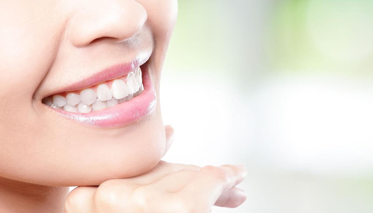 Alimenti che fanno bene ai denti