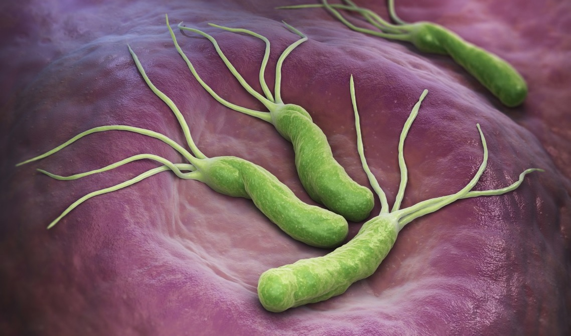 Helicobacter pylori, la cause dell'ulcera allo stomaco