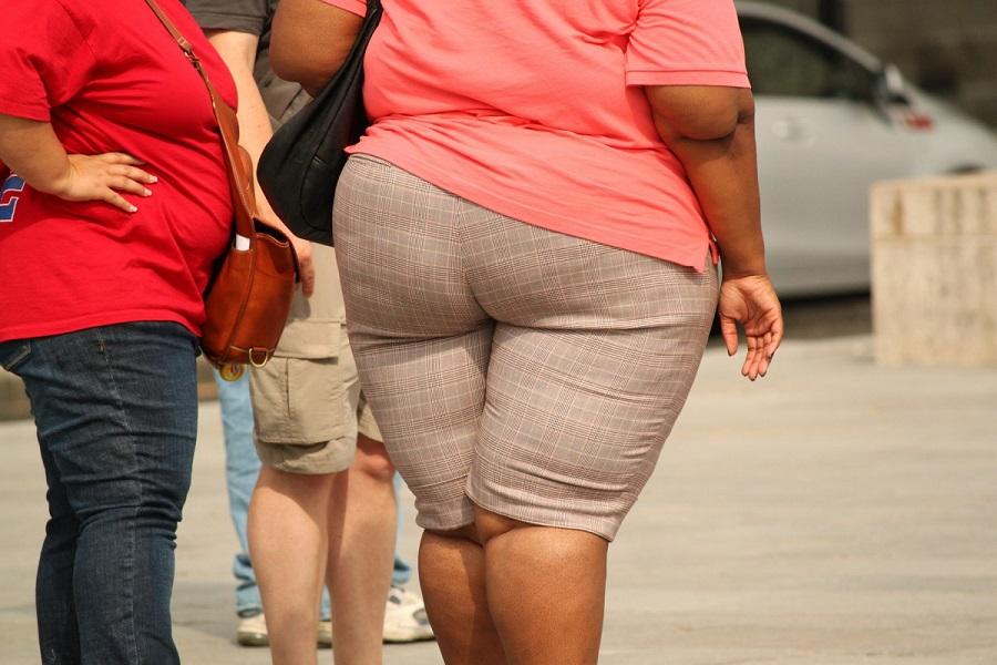 A cosa è dovuta l'obesità?