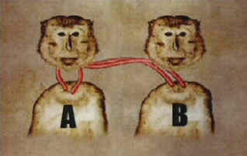 Negli anni 70 fu eseguito il primo trapianto di testa su delle scimmie