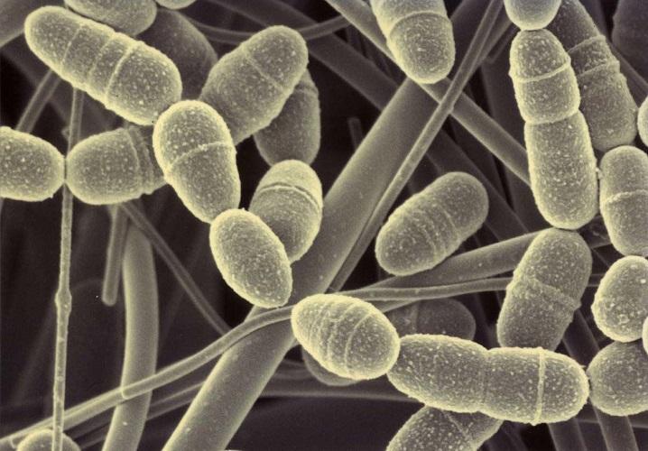 La carie è causata da diversi batteri, il più frequente è lo Streptococcus mutans