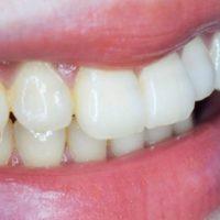 Nella preistoria si curavano i denti?